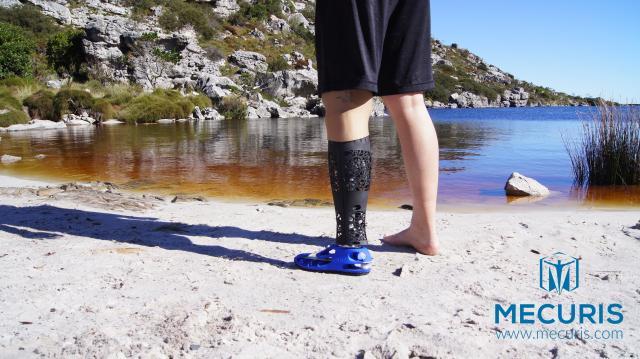 Revolution der Orthopädietechnik: mit 3D-Druck und SOLIDWORKS.